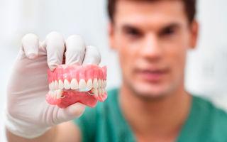 Протезирование зубов в стоматологии